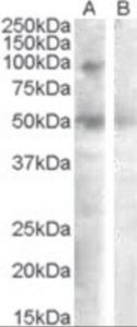 Western blot analysis of SULF2 in human ovary lysate (35 ug protein in RIPA buffer) with (B) and without (A) blocking with the immunizing peptide using SULF2 Antibody at 0.3 ug/mL.