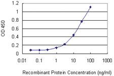 Anti-GNLY Mouse Monoclonal Antibody [clone: 2A6]