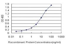 Anti-KMT2B Mouse Monoclonal Antibody [clone: 4C10]