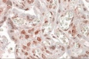Immunohistochemistry staining of MLX in paraffin embedded human placenta using MLX Antibody at 3.8 u. Steamed antigen retrieval with citrate buffer pH 6, AP-staining.