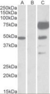HEK293 lysate (10 ug protein in RIPA buffer) overexpressing human ANGPT1 with DYKDDDDK tag probed with (1/1000) in lane C. Mock-transfected HEK293 probed with (1 mg/mL) in Lane B. Primary incubations were for 1 hour.