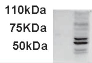 Western blot analysis of AIM2 in IFNbeta-treated WI-38 lysate (35 ug protein in RIPA buffer) using AIM2 Antibody at 1 ug/mL.