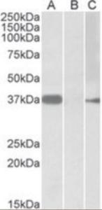 Anti-MYF6 Goat Polyclonal Antibody