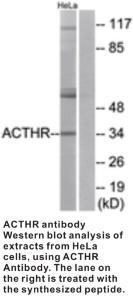 Anti-ACTHR Rabbit Polyclonal Antibody