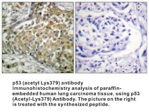 Anti-P53 Rabbit Polyclonal Antibody