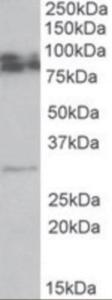 Western blot analysis of GPM6A in rat brain lysate (35 ug protein in RIPA buffer) using GPM6A Antibody at 0.5 ug/mL.