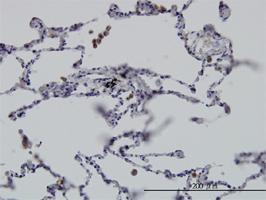 Anti-GIT2 Mouse Monoclonal Antibody [clone: 3B5-B9]