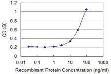 Anti-GIT2 Mouse Monoclonal Antibody [clone: M1]