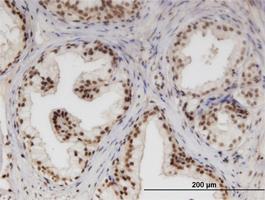 Anti-NUPL1 Mouse Monoclonal Antibody [clone: 3G11]