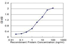 Anti-ENTPD4 Mouse Monoclonal Antibody [clone: 4H7]