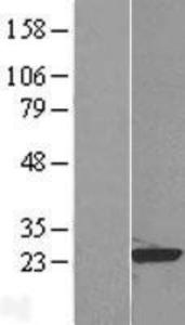 RAP1B Lysate (Adult Normal), Novus Biologicals (NBP2-08773)