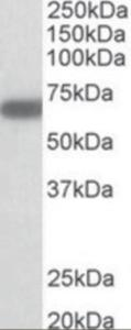 Western blot analysis of GAD1 in mouse brain lysate (35 ug protein in RIPA buffer) using GAD1 Antibody at 1 ug/mL. Primary incubation time was 1 hour.