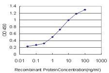 Anti-NR1H4 Mouse Monoclonal Antibody [clone: 1B10]