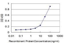 Anti-CREB5 Mouse Monoclonal Antibody [clone: 100]
