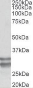 Western blot analysis of KLF13 in Human Heart Lysate (35 ug protein in RIPA buffer) using KLF13 antibody at 0.1 ug/mL. Primary incubation was 1 hour.
