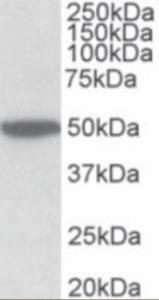 Western blot analysis of CHRM2 in Mouse Brain Lysate (35 ug protein in RIPA buffer) using CHRM2 antibody at 2 ug/mL. Primary incubation was 1 hour. Detected by chemiluminescence.