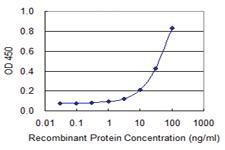 Anti-IGF2BP2 Mouse Monoclonal Antibody [clone: 4C6]