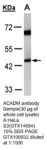 Anti-ACADM Rabbit Polyclonal Antibody