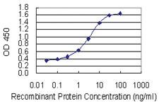 Anti-TLK1 Mouse Monoclonal Antibody [clone: 4B3]