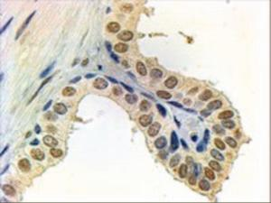 Androgen Receptor Antibody (2µg/ml) staining of paraffin embedded Human Prostate. Steamed antigen retrieval with citrate buffer pH 6, AP-staining.