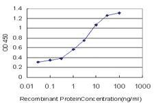 Anti-CAMKK2 Mouse Monoclonal Antibody [clone: 4C7]