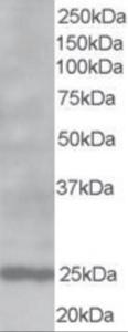 Western blot analysis of BCL2 in human Lymph Node lysate (RIPA buffer, 35 ug total protein per lane) using BCL2 Antibody at 1 ug/mL.