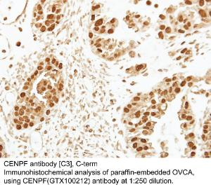 Anti-GPI Rabbit Polyclonal Antibody