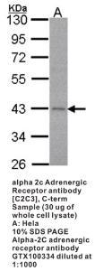 Anti-ADRA2C Rabbit Polyclonal Antibody