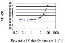 Anti-PMVK Mouse Monoclonal Antibody [clone: 2B8]