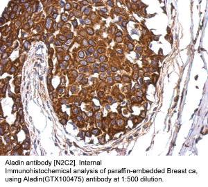 Anti-TYRO3 Rabbit Polyclonal Antibody