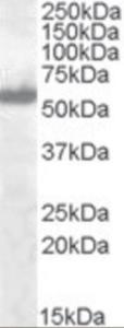 Western blot analysis of IRF5 in A549 lysate (RIPA buffer, 30 ug total protein per lane) using IRF5 Antibody at 0.1 ug/mL.