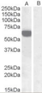 HEK293 overexpressing IRF5 and probed with IRF5 Antibody at 1 ug/mL (mock transfection in land B).