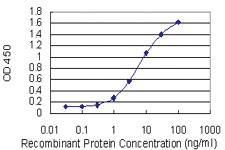 Anti-LBX1 Mouse Monoclonal Antibody [clone: 2B2]