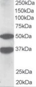 Western blot analysis of PACSIN1 in human brain lysate (35 ug protein in RIPA buffer) using PACSIN1 Antibody at 1 ug/mL.