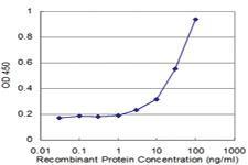 Anti-SOCS3 Mouse Monoclonal Antibody [clone: 2H2]