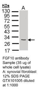 Anti-MAPKAPK5 Rabbit Polyclonal Antibody