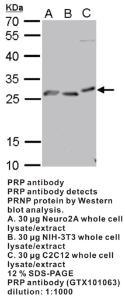 Anti-PRP Rabbit Polyclonal Antibody