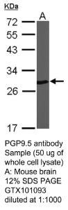 Anti-UCHL1 Rabbit Polyclonal Antibody