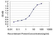 Anti-HELZ Mouse Monoclonal Antibody [clone: 1C11]