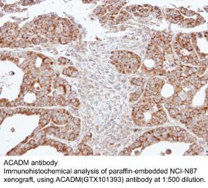 Anti-GST Rabbit Polyclonal Antibody