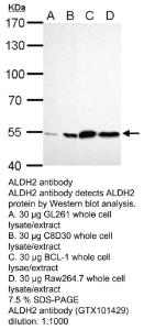Anti-TTP Rabbit Polyclonal Antibody