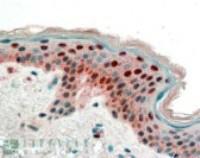 Immunohistochemistry staining of 14-3-3 in human skin using 14-3-3 Antibody at 2.5 ug/mL.