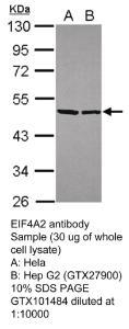 Anti-USP5 Rabbit Polyclonal Antibody