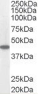 Western blot analysis of ACADM in human heart lysate (RIPA buffer, 35 ug total protein per lane) using ACADM Antibody at 0.05 ug/mL.
