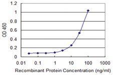 Anti-ABCG1 Mouse Monoclonal Antibody [clone: 2H8]