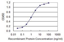 Anti-SEPT9 Mouse Monoclonal Antibody [clone: 2C6]