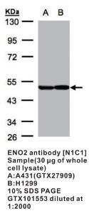 Anti-ENO2 Rabbit Polyclonal Antibody