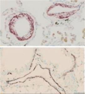 Anti-ACTA2 Goat Polyclonal Antibody