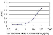 Anti-USP39 Mouse Monoclonal Antibody [clone: 4G11]