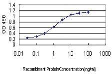 Anti-AKT3 Mouse Monoclonal Antibody [clone: 6E11]